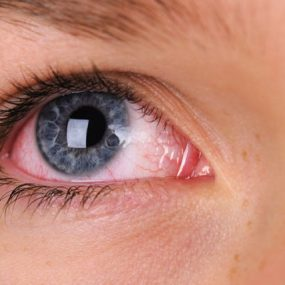 איך קנאביס עושה עיניים אדומות?