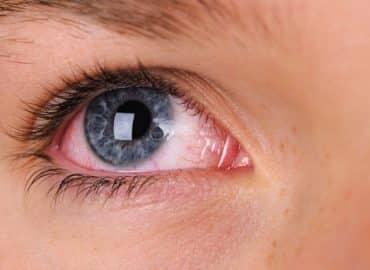 וויד עושה עיניים אדומות